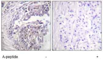 Immunohistochemistry (Formalin/PFA-fixed paraffin-embedded sections) - Histone H2B (acetyl K5) antibody (ab61227)