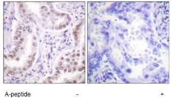 Immunohistochemistry (Formalin/PFA-fixed paraffin-embedded sections) - Histone H3 (acetyl K18) antibody (ab61233)