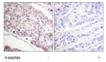 Immunohistochemistry (Formalin/PFA-fixed paraffin-embedded sections) - Histone H4 (acetyl K8) antibody (ab61237)