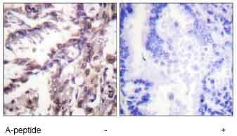 Immunohistochemistry (Formalin/PFA-fixed paraffin-embedded sections) - p53 (acetyl K381) antibody (ab61241)