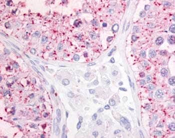 Immunohistochemistry (Formalin/PFA-fixed paraffin-embedded sections) - GPR68 antibody (ab61420)