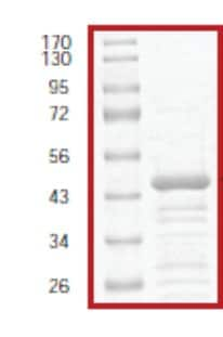 SDS-PAGE - IKB alpha protein (Tagged) (ab61427)