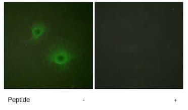Immunocytochemistry/ Immunofluorescence - Eph receptor B1 antibody (ab61765)