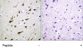 Immunohistochemistry (Formalin/PFA-fixed paraffin-embedded sections) - CSEN antibody (ab61770)