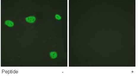 Immunocytochemistry/ Immunofluorescence - Vitamin D Receptor  antibody (ab61781)