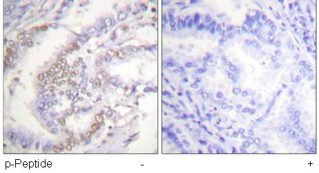 Immunohistochemistry (Formalin/PFA-fixed paraffin-embedded sections) - Ku70 (phospho S5) antibody (ab61783)