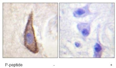Immunohistochemistry (Formalin/PFA-fixed paraffin-embedded sections) - CD226 (phospho S329) antibody (ab61790)