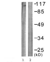 Western blot - Eph receptor B1 + Eph receptor B2 (phospho Y594) antibody (ab61791)