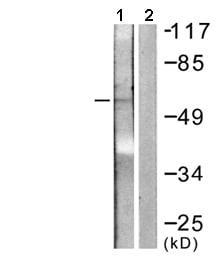 Western blot - IL2 Receptor alpha (phospho S268) antibody (ab61798)