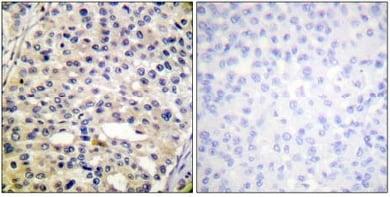 Immunohistochemistry (Formalin/PFA-fixed paraffin-embedded sections) - Vimentin (phospho S56) antibody (ab61802)
