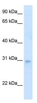 Western blot - LDB3 antibody (ab62179)