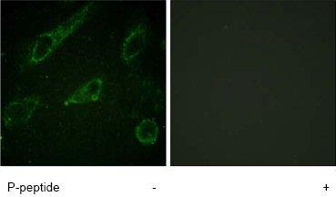 Immunocytochemistry/ Immunofluorescence - c Abl (phospho Y245) antibody (ab62189)