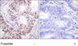 Immunohistochemistry (Formalin/PFA-fixed paraffin-embedded sections) - Cdc25C (phospho T48) antibody (ab62191)