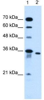 Western blot - SLC25A32 antibody (ab62192)