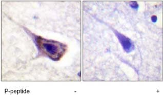 Immunohistochemistry (Formalin/PFA-fixed paraffin-embedded sections) - Bad (phospho S134) antibody (ab62212)