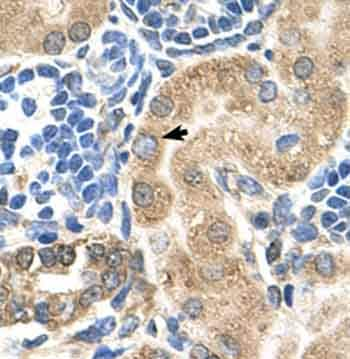 Immunohistochemistry (Formalin/PFA-fixed paraffin-embedded sections) - TM9SF1 antibody (ab62222)