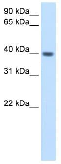 Western blot - ITGB1BP2 antibody (ab62300)