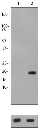 Western blot - Stathmin 1 (phospho S24) antibody [EP2124Y] (ab62336)