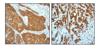 Immunohistochemistry (Formalin/PFA-fixed paraffin-embedded sections) - Hsp27 antibody [EP1724Y] - Aminoterminal end (ab62339)