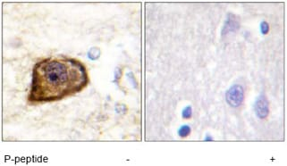 Immunohistochemistry (Formalin/PFA-fixed paraffin-embedded sections) - PDGF Receptor beta (phospho Y1021) antibody (ab62437)