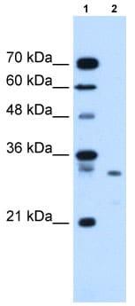 Western blot - Syntenin antibody (ab62530)