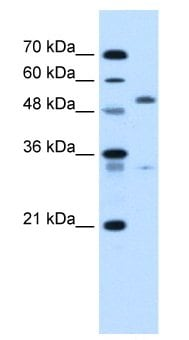 Western blot - PODXL antibody (ab62594)