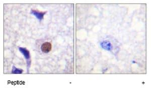 Immunohistochemistry (Formalin/PFA-fixed paraffin-embedded sections) - Histone H3.3 antibody (ab62642)