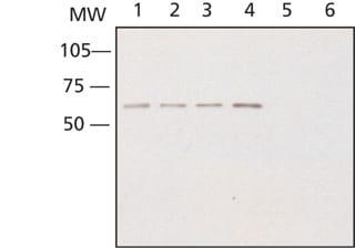 Western blot - CRMP2 antibody (ab62661)