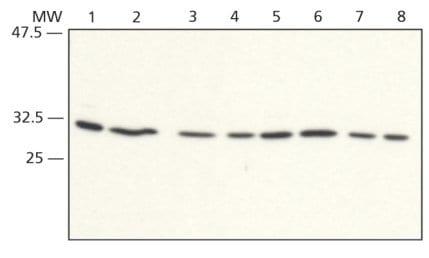 Western blot - RACK1 antibody (ab62736)