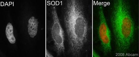 Immunocytochemistry/ Immunofluorescence - Superoxide Dismutase 1 antibody (ab62800)