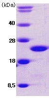 SDS-PAGE - Cofilin protein (His tag) (ab62958)