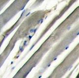 Immunohistochemistry (Formalin/PFA-fixed paraffin-embedded sections) - PI 3 Kinase p85 alpha antibody (ab63040)