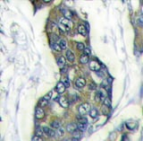Immunohistochemistry (Formalin/PFA-fixed paraffin-embedded sections) - Stanniocalcin 2 antibody (ab63057)