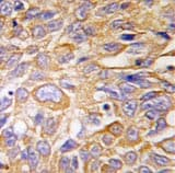 Immunohistochemistry (Formalin/PFA-fixed paraffin-embedded sections) - DDIT4 antibody (ab63059)