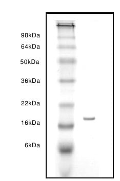 SDS-PAGE - Fatty Acid Binding Protein 5 protein (ab63112)
