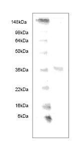 SDS-PAGE - Haptoglobulin b protein (His tag) (ab63120)