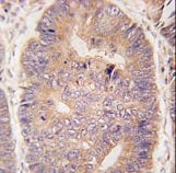 Immunohistochemistry (Formalin/PFA-fixed paraffin-embedded sections) - TASP1 antibody (ab63160)