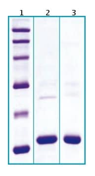 SDS-PAGE - Cystatin C protein (His tag) (ab63286)