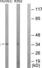 Western blot - Anti-Casein Kinase 1 alpha antibody (ab63373)