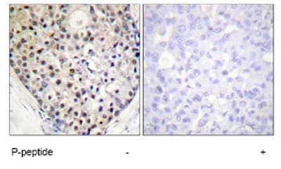 Immunohistochemistry (Formalin/PFA-fixed paraffin-embedded sections) - GADD153 (phospho S30) antibody (ab63392)