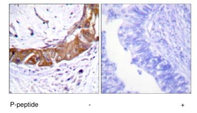 Immunohistochemistry (Formalin/PFA-fixed paraffin-embedded sections) - IRAK (phospho T100) antibody (ab63484)