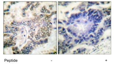 Immunohistochemistry (Formalin/PFA-fixed paraffin-embedded sections) - CEBP Alpha antibody (ab63486)
