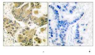 Immunohistochemistry (Formalin/PFA-fixed paraffin-embedded sections) - SGK1 antibody (ab63527)