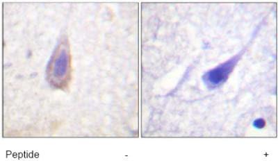 Immunohistochemistry (Formalin/PFA-fixed paraffin-embedded sections) - Delta Opioid Receptor antibody (ab63536)