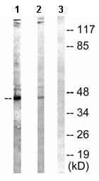 Western blot - NCF1 (phospho S304) antibody (ab63554)