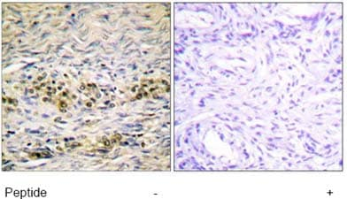 Immunohistochemistry (Formalin/PFA-fixed paraffin-embedded sections) - AKT1 antibody (ab63614)