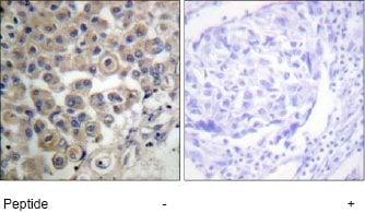 Immunohistochemistry (Formalin/PFA-fixed paraffin-embedded sections) - Phospholipase C beta 3 antibody (ab63627)