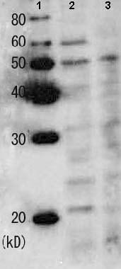 Western blot - Rad22 antibody (ab63800)