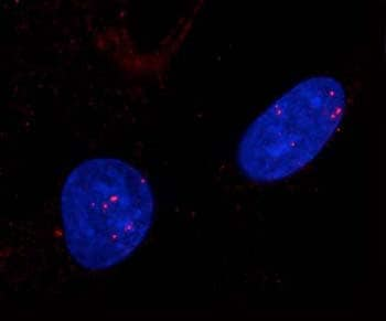 Immunocytochemistry/ Immunofluorescence - Rad51 antibody (ab63801)
