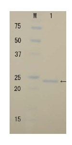 SDS-PAGE - RuvA protein (ab63819)